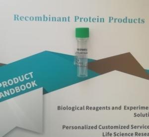 重组人源AXL Protein, His Tag产品图片